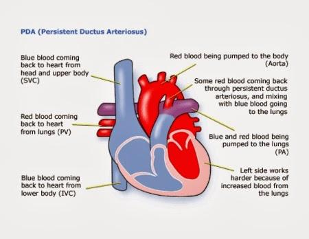 PDA heart condition